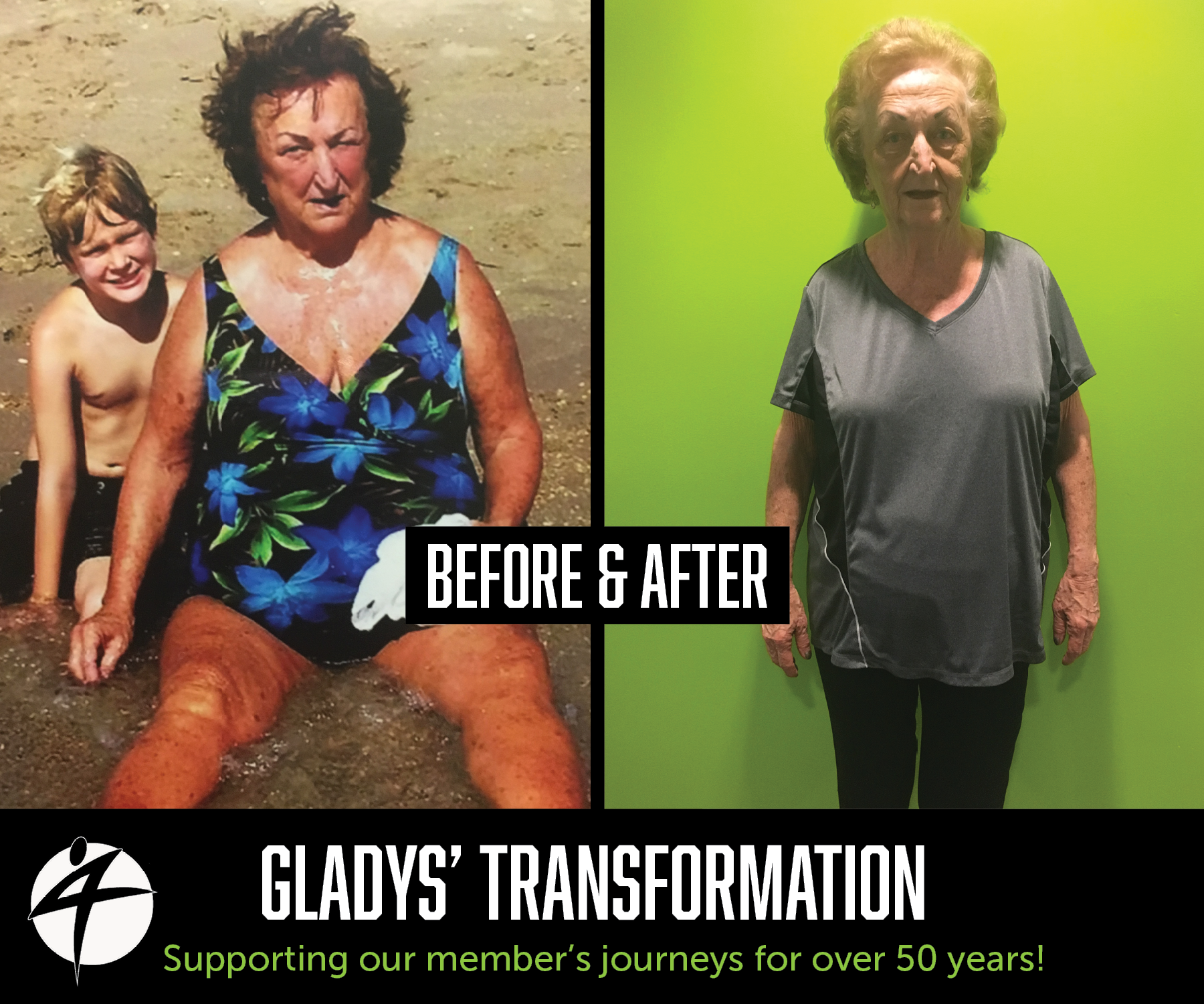 Gladys Before and After May 2018