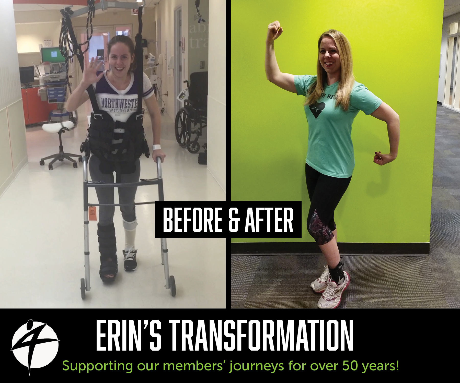 Erins_Before and After July 2018